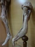 Препараты верхней и нижней конечностей